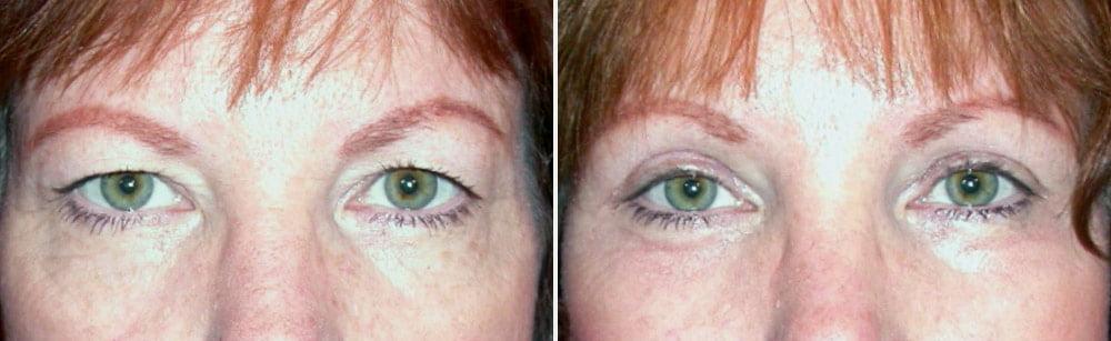 Eyelid Surgery Case # 120