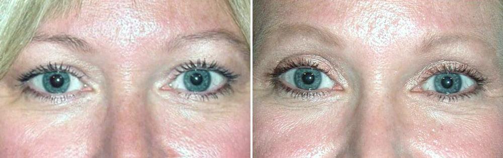 Eyelid Surgery Case # 121