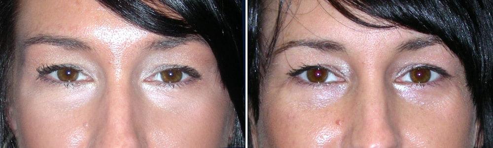 Eyelid Surgery Case # 130