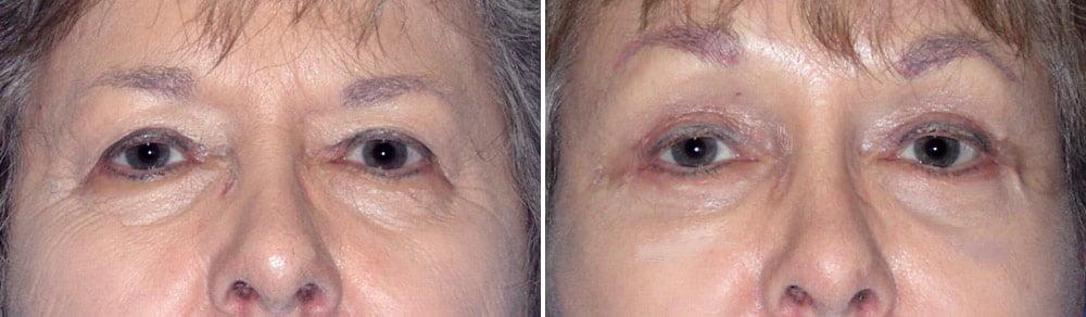 Eyelid Surgery Case # 132