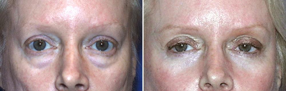 Eyelid Surgery Case # 133