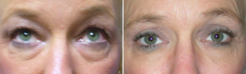 Eyelid Surgery Case # 134