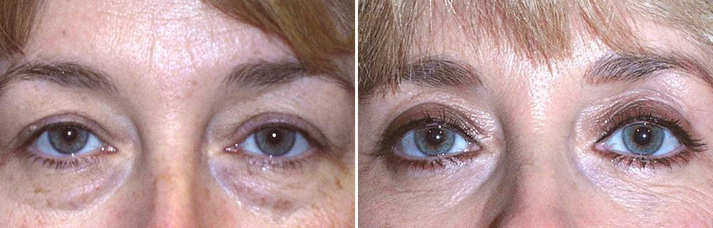 Eyelid Surgery Case # 131