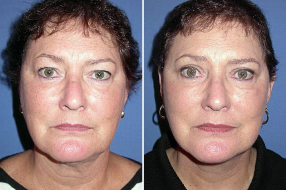 Face Lift Case # 125