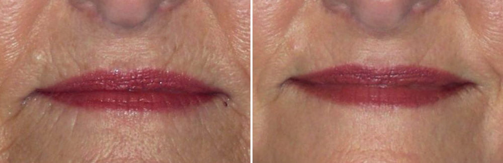 Laser Resurfacing Case # 173