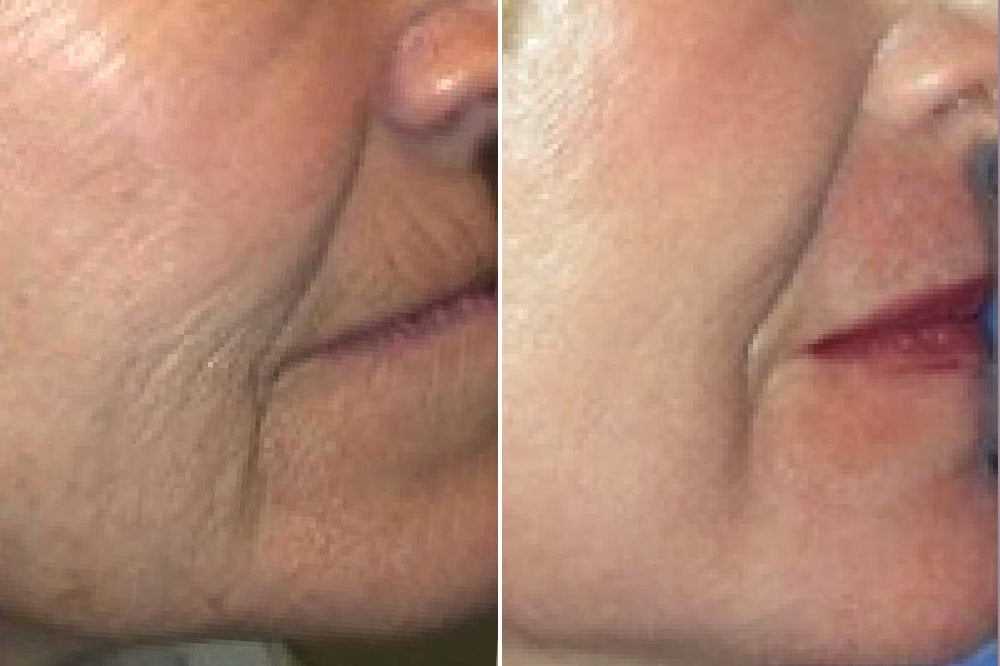 Laser Resurfacing Case # 174