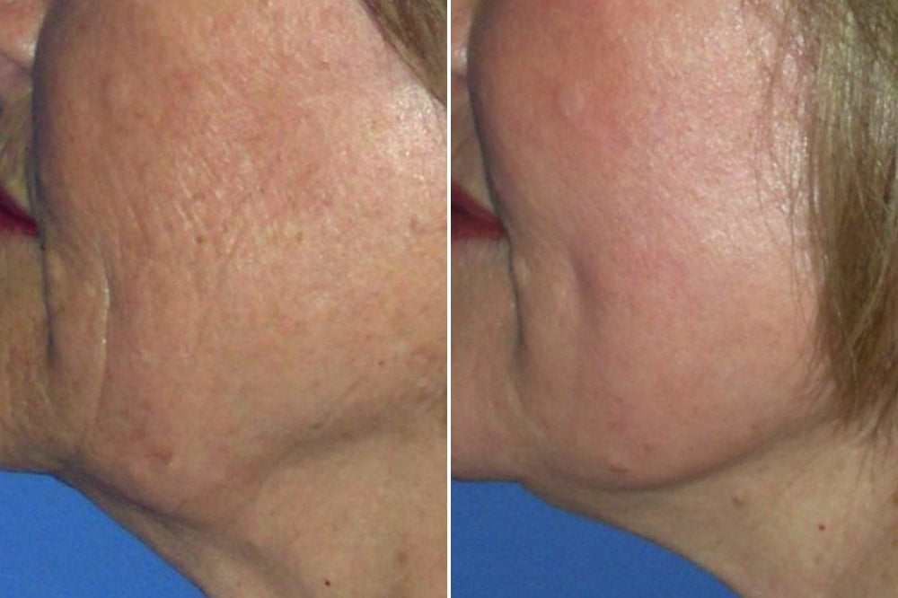 Laser Resurfacing Case # 175
