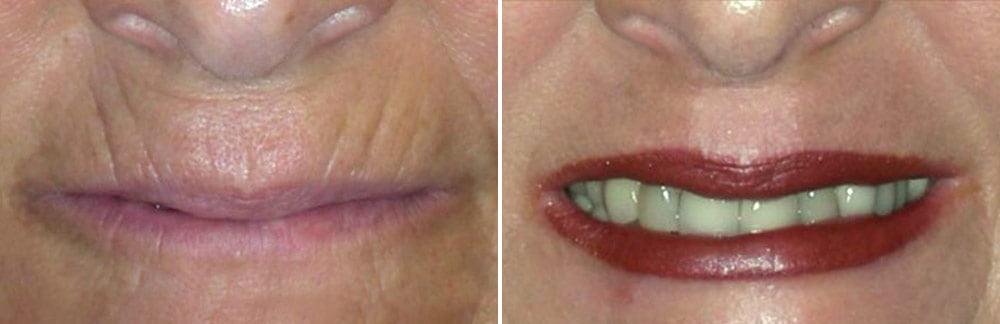 Laser Resurfacing Case # 176