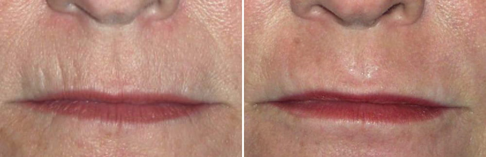 Laser Resurfacing Case # 177
