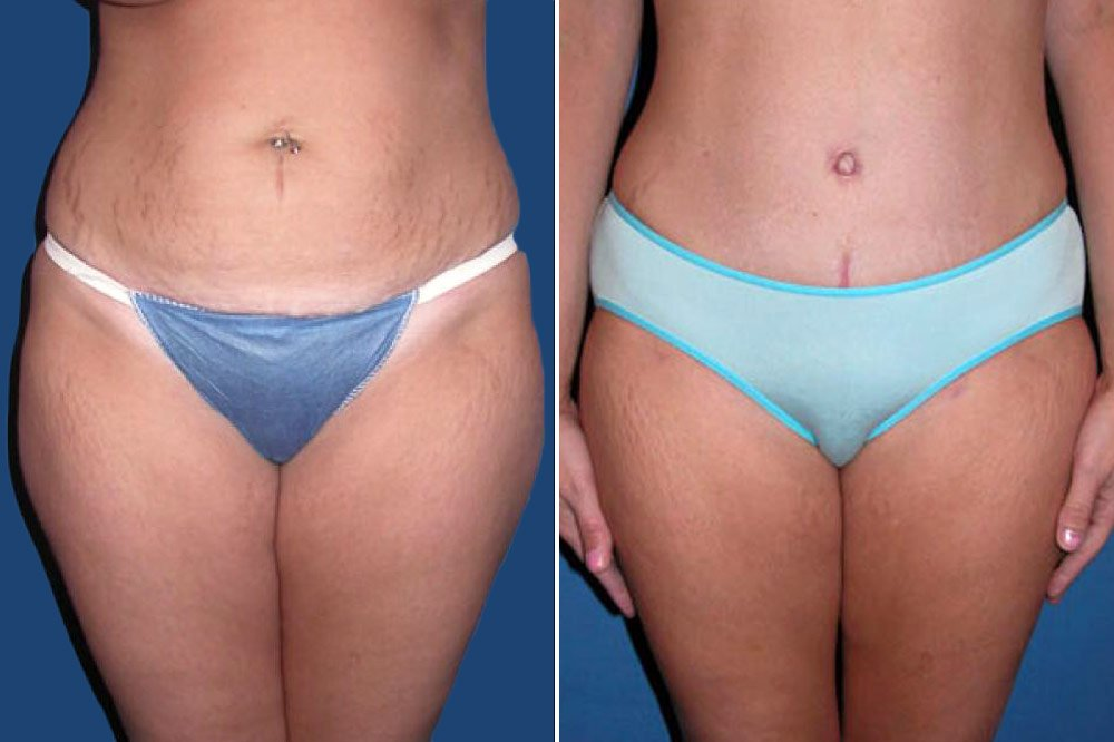 Liposuction Case # 101