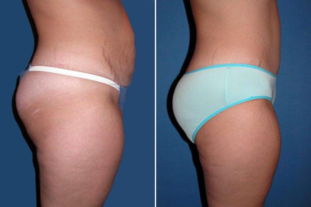 liposuction-case-101c