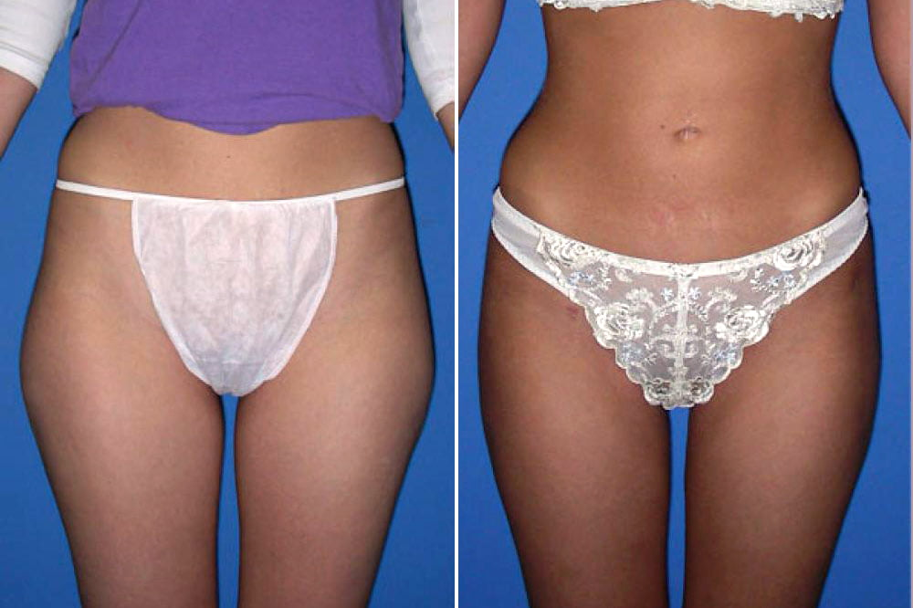 Liposuction Case # 102
