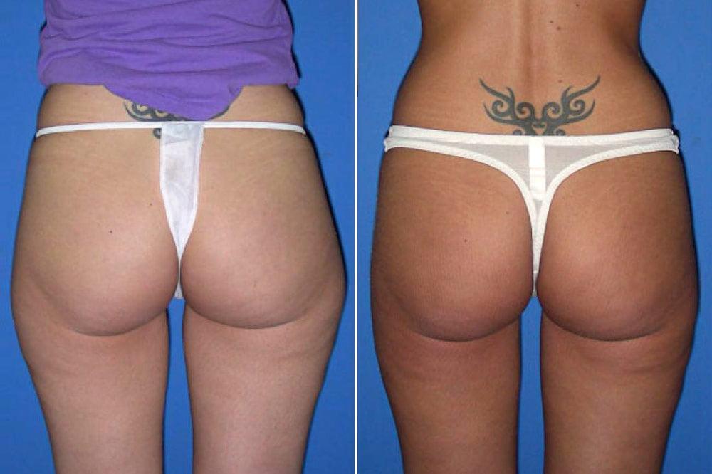 liposuction-case-102d
