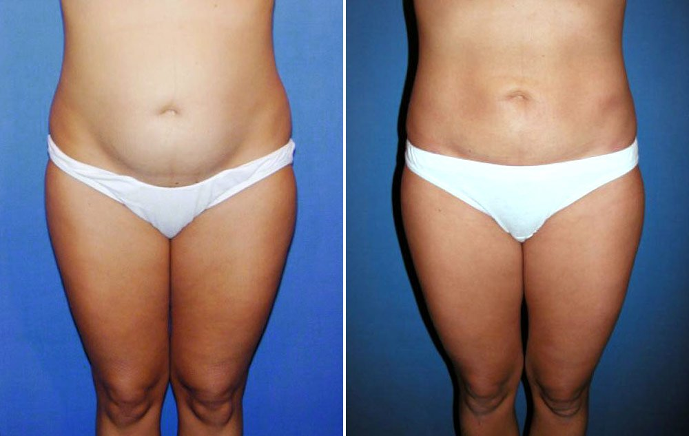 Liposuction Case # 135