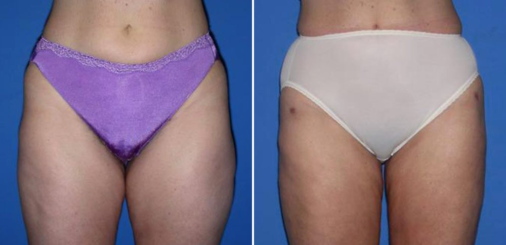 Liposuction Case # 136