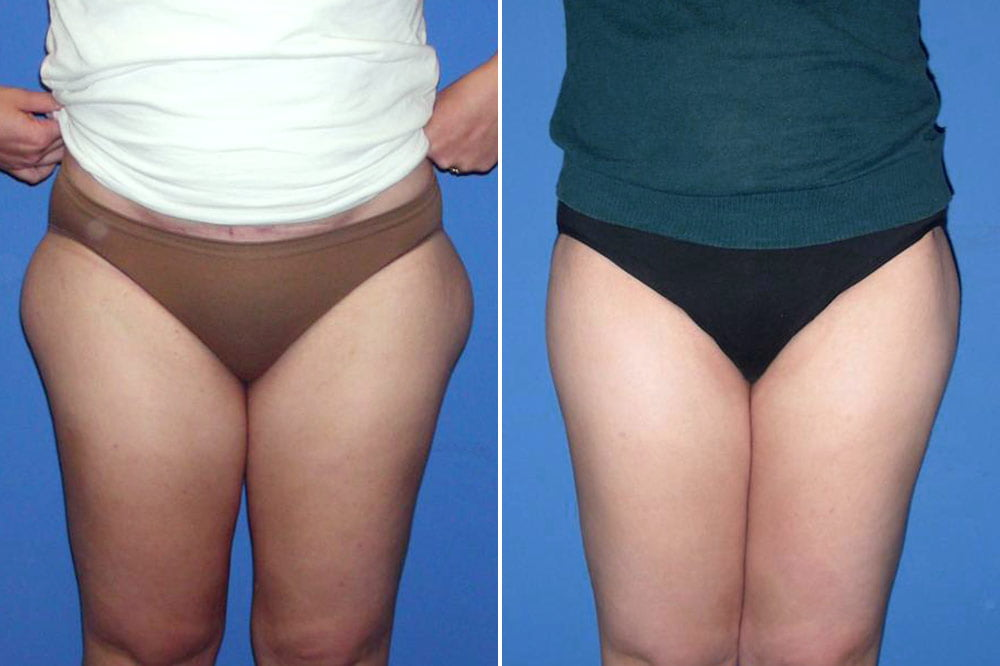 Liposuction Case # 137