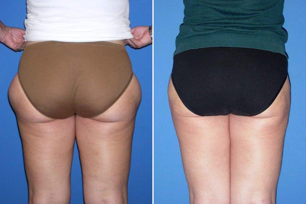 liposuction-case-137d
