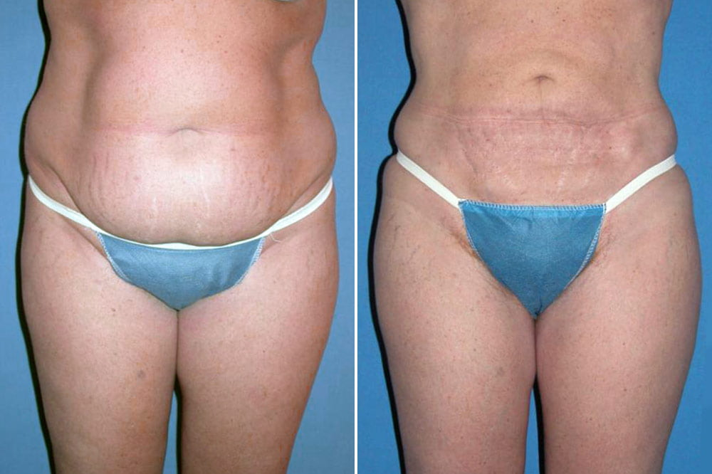Liposuction Case # 138