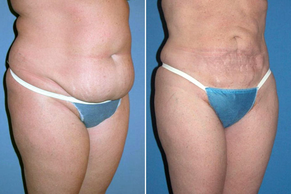 liposuction-case-138b