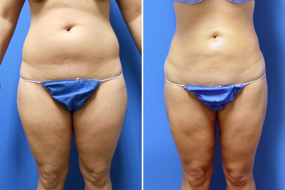 Liposuction Case # 150