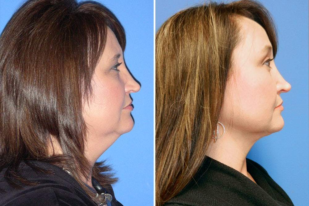 Neck Liposuction Case #100