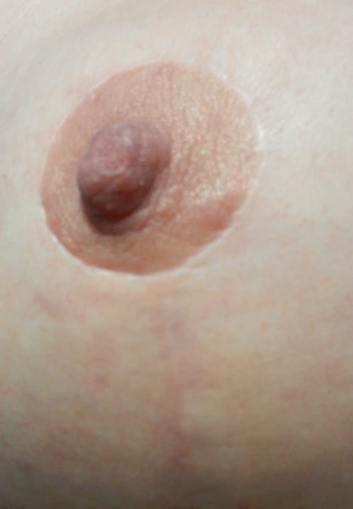 nipple-vertical-scar-detail