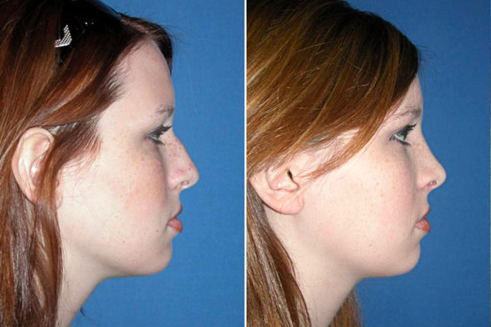 Rhinoplasty Case # 132