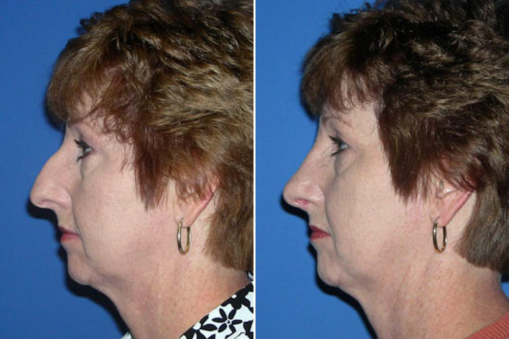 Rhinoplasty Case # 133