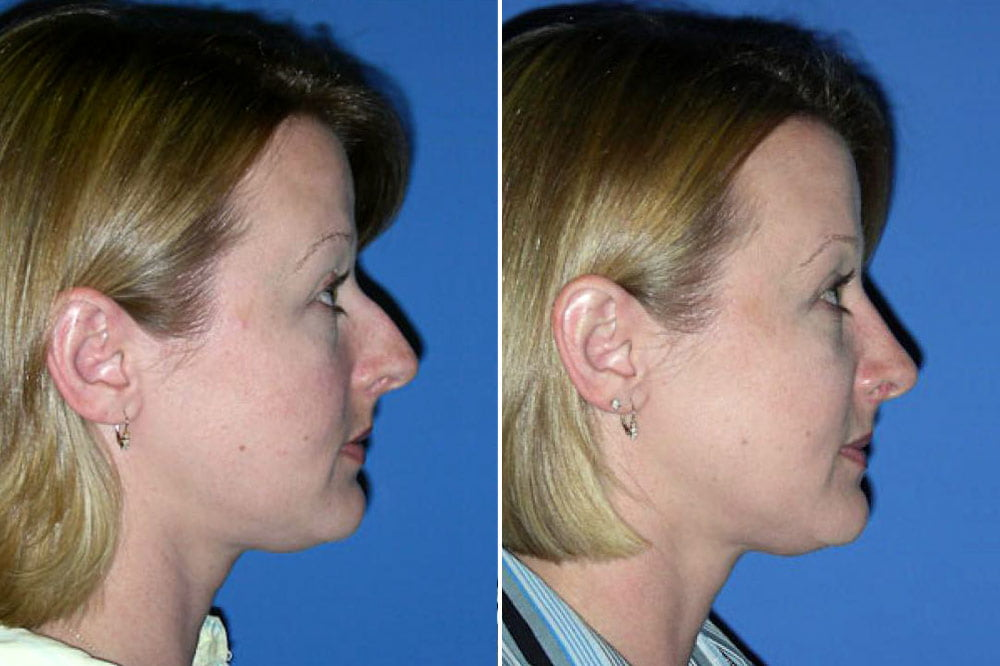 Rhinoplasty Case # 134