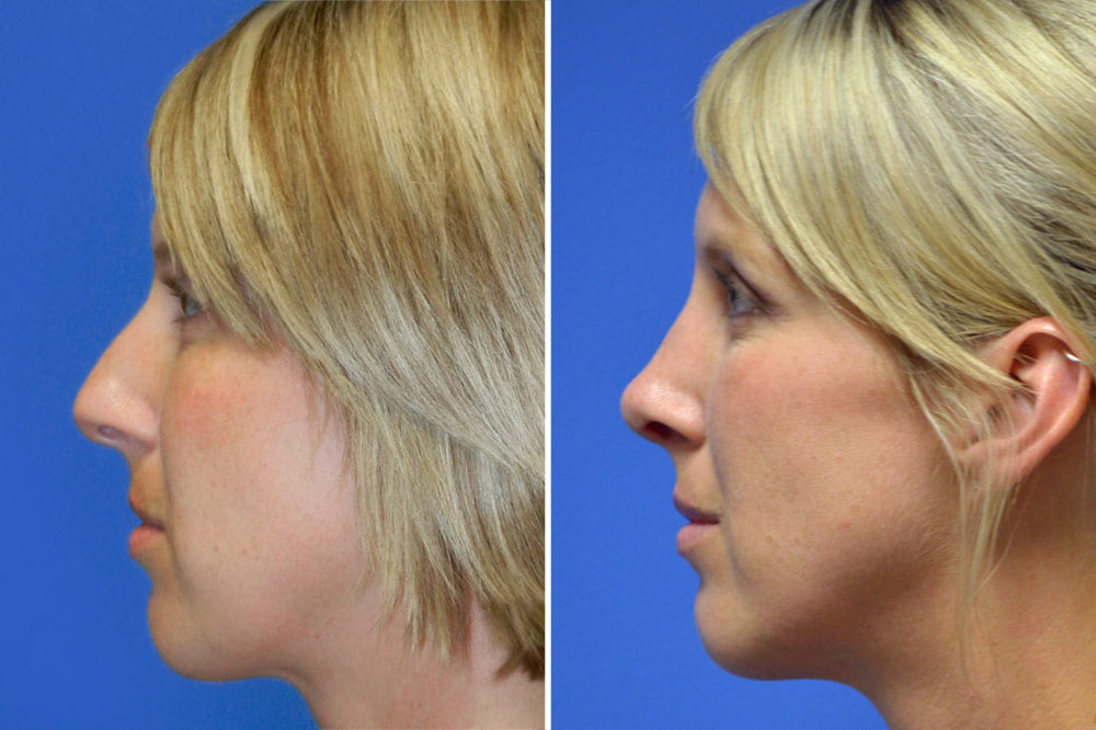 Rhinoplasty Case # 150
