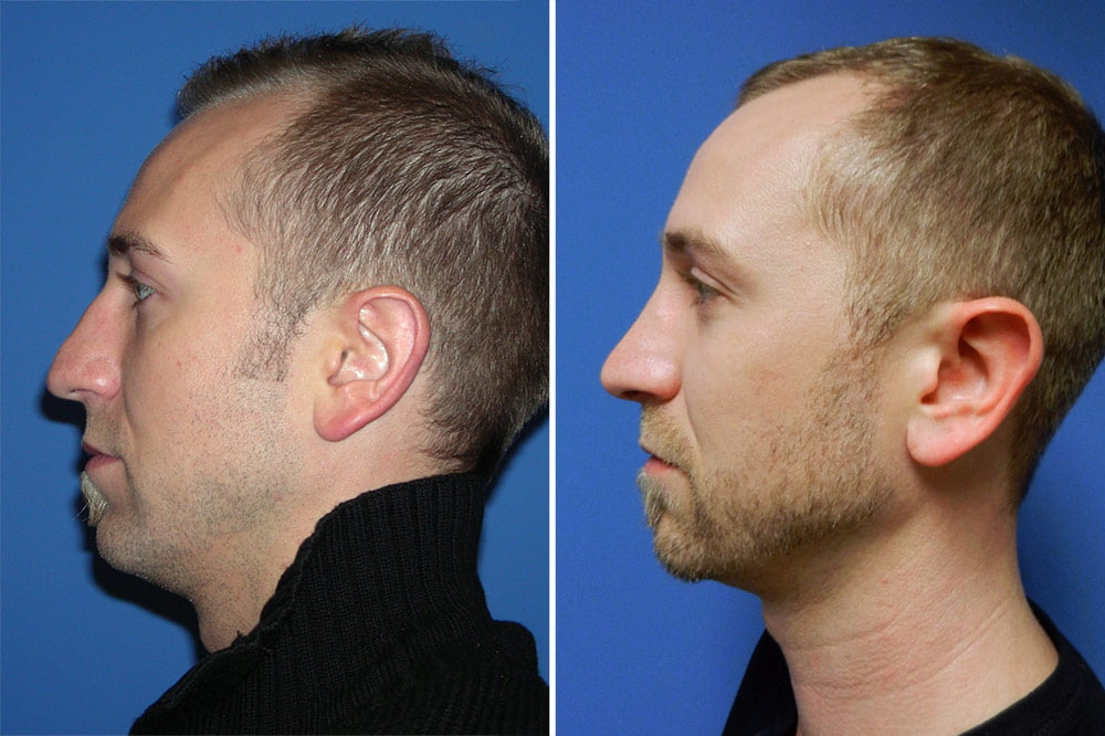 Rhinoplasty Case # 151