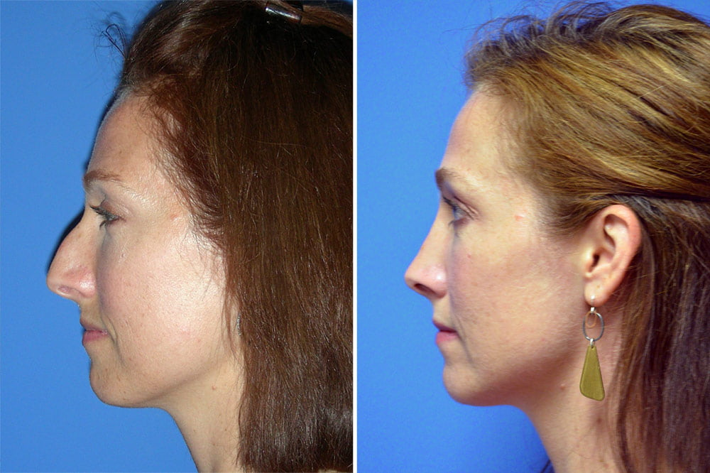 Rhinoplasty Case # 152