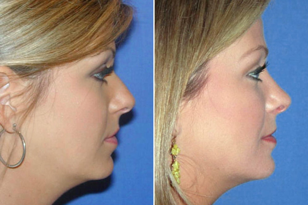 Rhinoplasty Case # 130