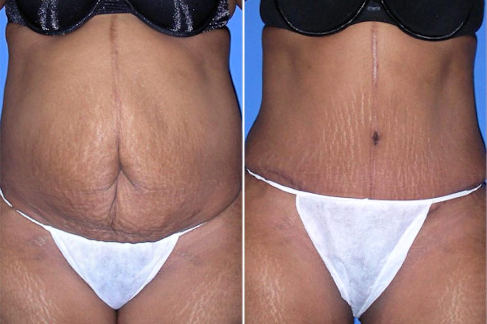 Tummy Tuck Case # 103
