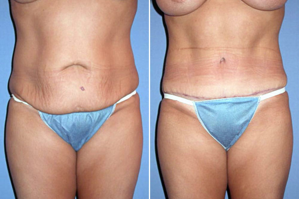 Tummy Tuck Case # 104