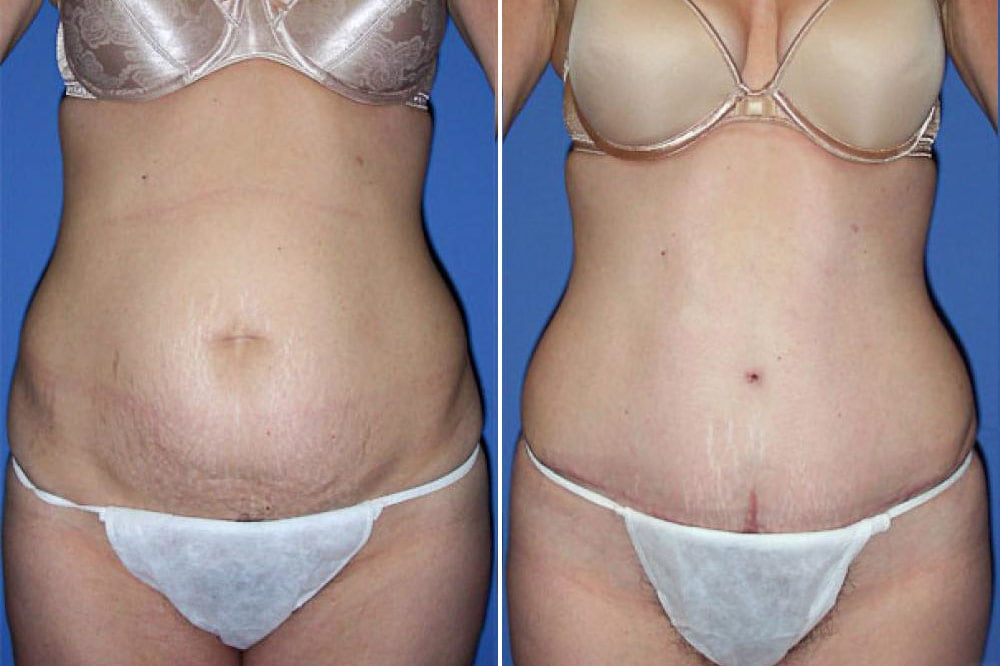 Tummy Tuck Case # 105