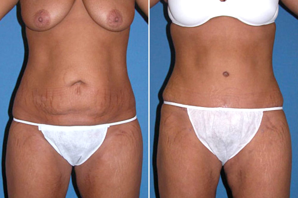 Tummy Tuck Case # 106