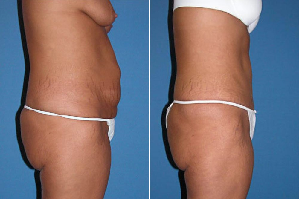 how to tell if someone had a tummy tuck