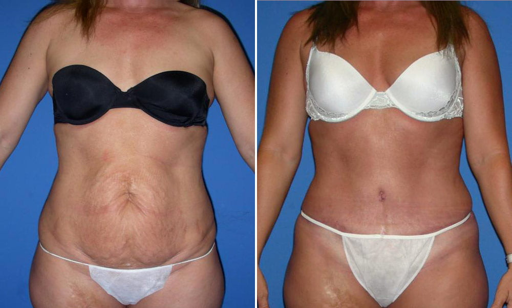 Tummy Tuck Case # 154