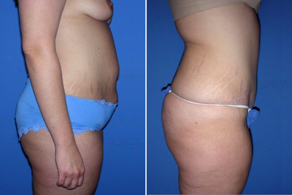 Tummy Tuck Case # 155
