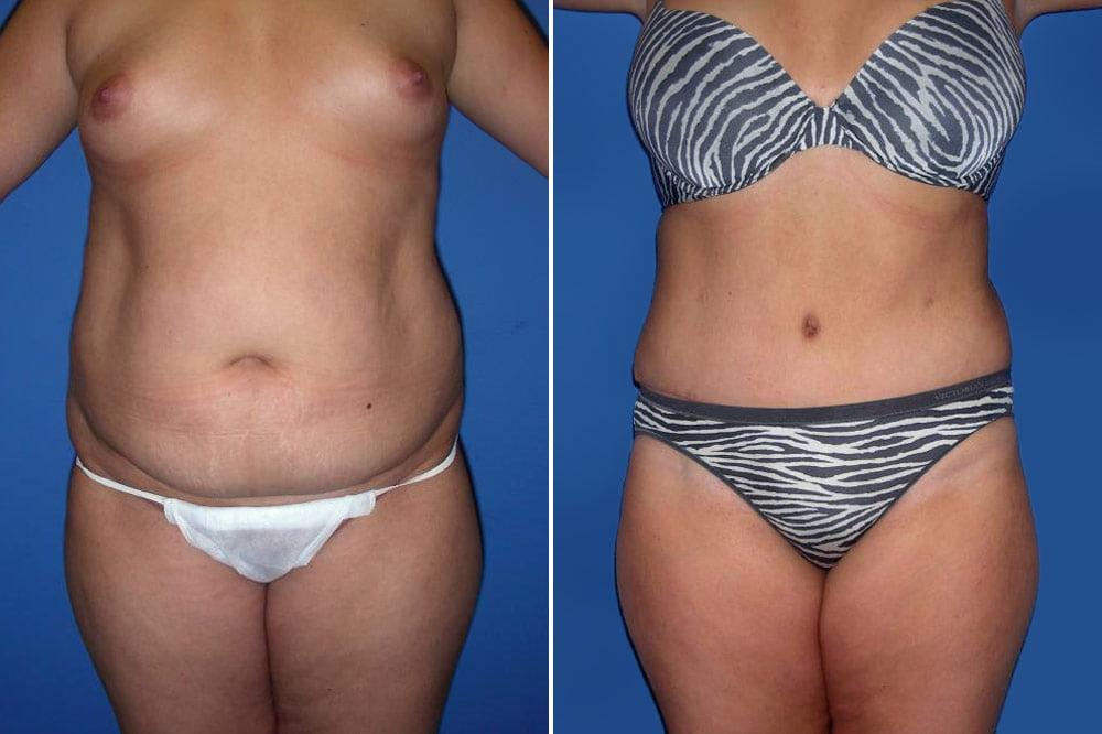 Tummy Tuck Case # 158