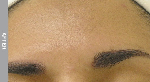 Hyperpigmentation-After