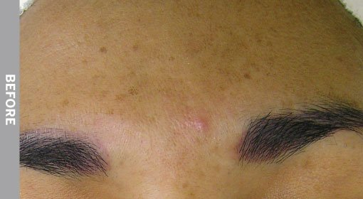 Hyperpigmentation-Before