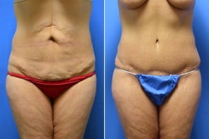 Tummy Tuck Case # 210