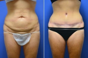 Tummy Tuck Case # 211