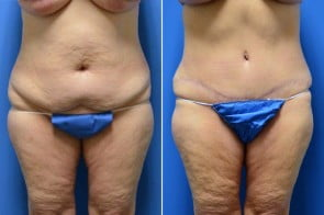 Tummy Tuck Case # 212