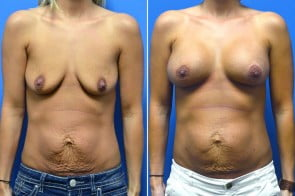 Breast Augmentation Case # 220
