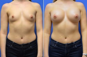 Breast Augmentation Case # 223