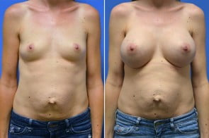 Breast Augmentation Case # 224