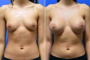 Breast Augmentation Case # 225